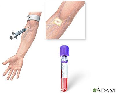 Como identificar dengue no exame de sangue
