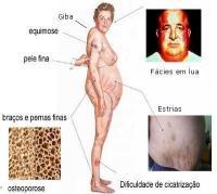 Efeitos colaterais dos corticóides