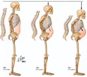 Osteoporose/ o que você precisa saber.