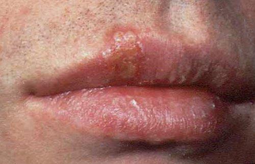 how to avoid genital herpes