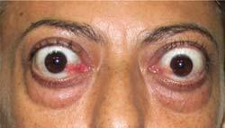 Hypostases de bolsas de olhos abaixo de olhos