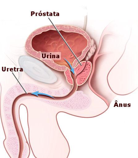 próstata agrandada 100 días