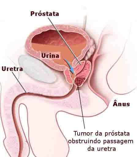wohnmobil sex prostata selbst massieren