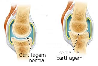 19974-osteoartrite