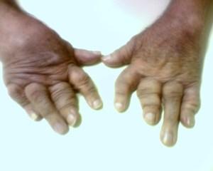 artrite-psoriatica