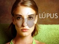 lupus-eritematoso-sistemico-120604081040-phpapp01-thumbnail-2