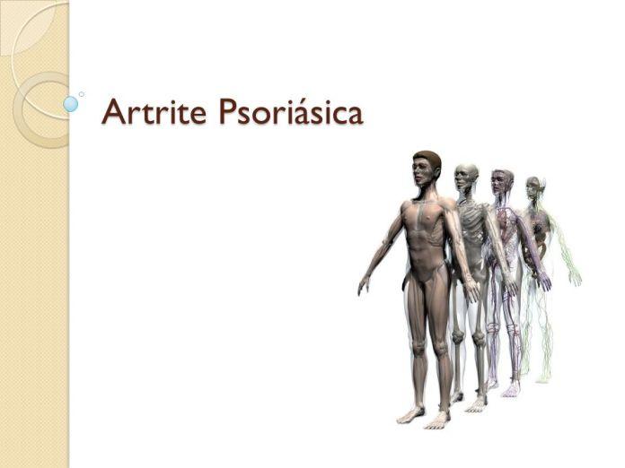 25dd3-artrite2bpsoriatica